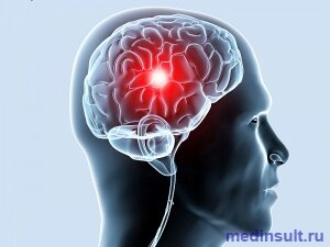 Хроническая ишемия головного мозга: степени, симптомы, лечение ...