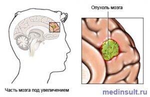есть ли случаи выздоровления от рака 4 стадии
